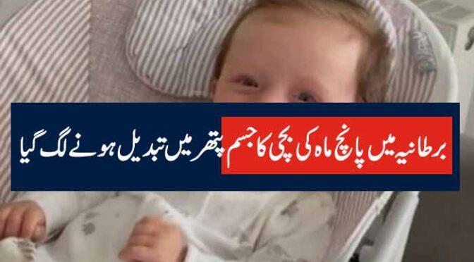 برطانیہ میں پانچ ماہ کی بچی کا جسم پتھر میں تبدیل ہونےلگ گیا